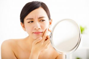 senseorient best natural skincare for acne